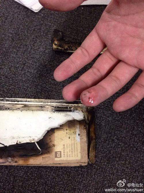 Смартфон Xiaomi взорвался и ранил своего владельца