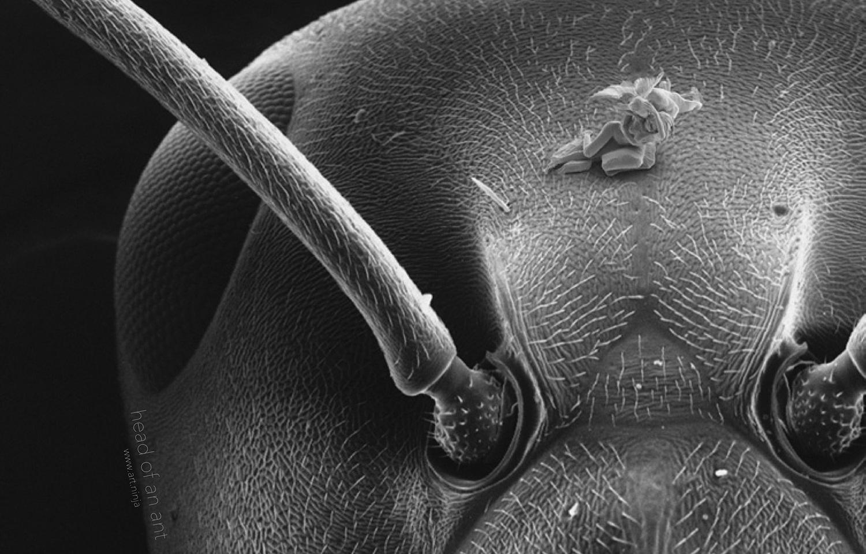 Сперма в микроскоп 15 фотография