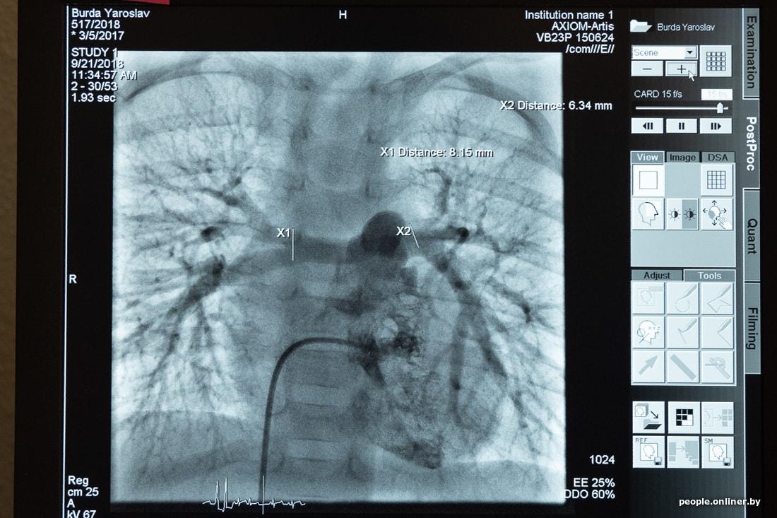 Бурда: не сразу сделали операцию, поэтому потерял 4 или 5 месяцев