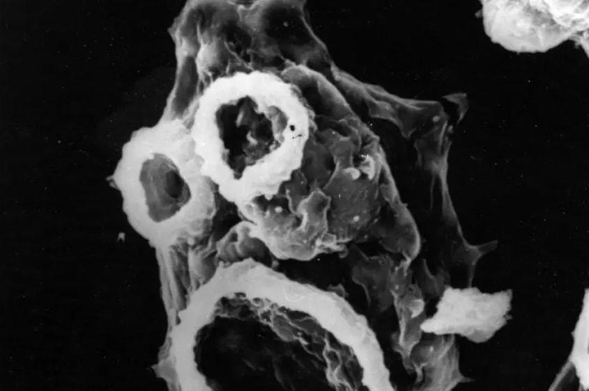 Страшнее, чем COVID: из-за потепления пожирающие мозг амебы расширяют ареал обитания и движутся на север