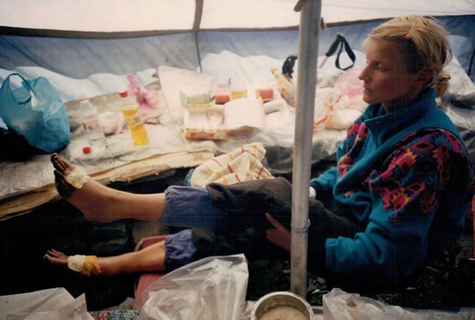 Обмороженные стопы Ирины реанимируют в базовом лагере.