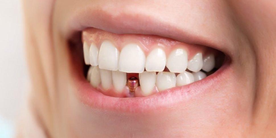 У переболевших COVID-19 выпадают зубы. Не у всех